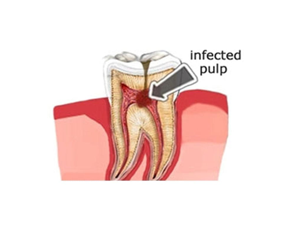 diagram showcasing an infected pulp