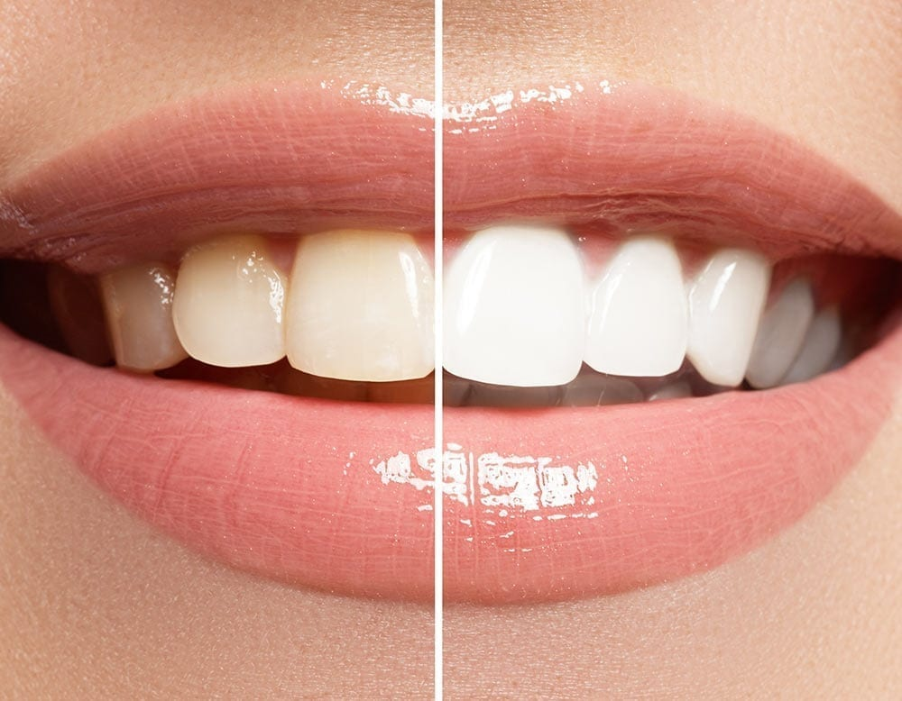 Side by side comparison of a before and after teeth whitening